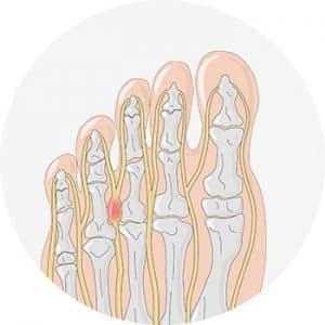 nevrome-morton